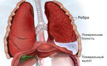 Экссудативный плеврит — причины, лечение, симптомы