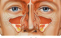 Лечение верхнечелюстного синусита