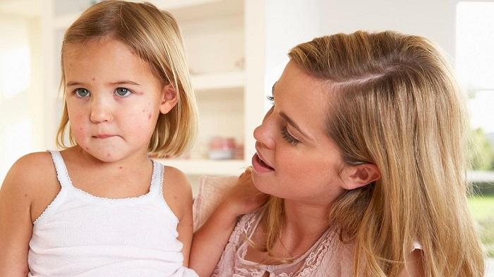 мама и дочь с розовым лишаем